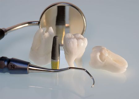 Real Human Wisdom teeth, titanium implant and Dental instruments photo