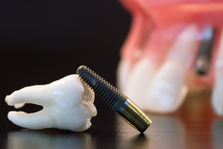 Real Human Wisdom tooth, Implant Dental and Plastic teeth model photo