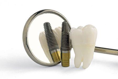orthodontist: Human tooth, titanium implant, dental mirror close up