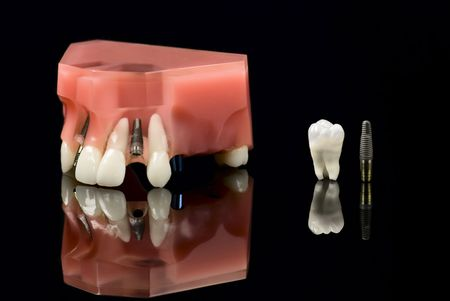 Real Human Wisdom tooth, Dental Titanium Implant and Plastic teeth model photo