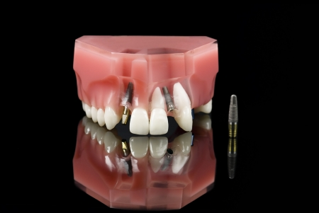 tooth extraction: Real Human Wisdom tooth, Dental Titanium Implant and Plastic teeth model over black