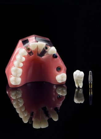 distraction: Real Human Wisdom tooth, Dental Implant and Plastic Teeth Mmodel over black Stock Photo