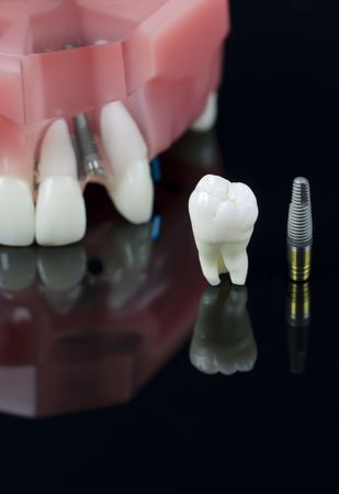 distraction: Real Human Wisdom tooth, Dental Implant and Plastic teeth model Stock Photo