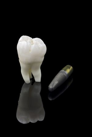 distraction: Human wisdom tooth and titanium implant over black Stock Photo