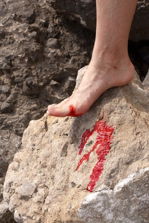 injure: Bleeding wound on leg