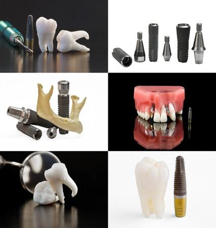 dental implant: Dental background. Set of dental images