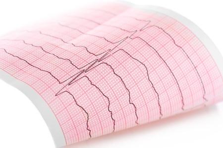 Cardiogram Macro of ECG graph