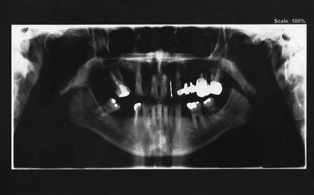 Panoramic radiography of mouth with several implants