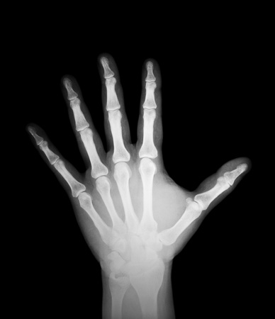 x-ray of human hand Stock Photo - 11976110