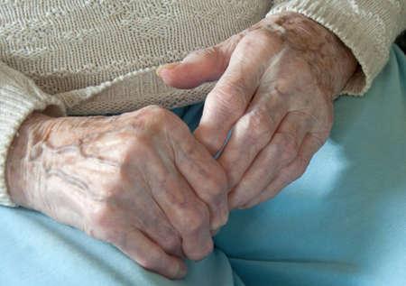 degenerative: Rheumatoid  Arthritis Stock Photo