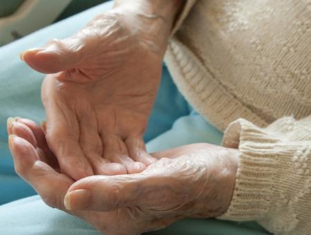 Elderly Woman with Open Arthritic Hands