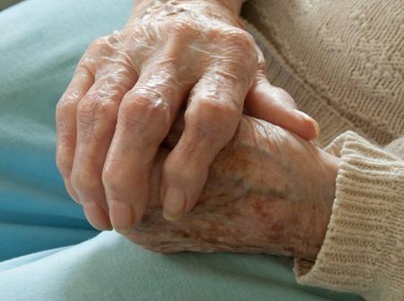 Senior Holding Arthritic Hand