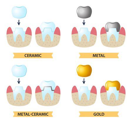 Service d'installation d'une couronne en céramique. Icônes sur le thème dentaire.