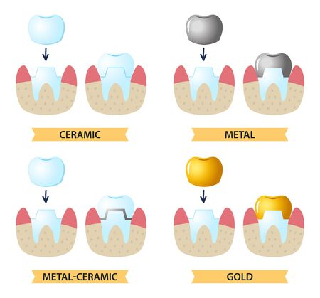 Service installation of a ceramic crown. Icons on the dental Theme. Illustration