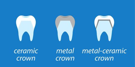 Icons dental on blue background. Service installation of a ceramic crown. As well as a metal and gold crown on the tooth. Set icons flat style.