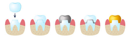Icons on the dental Theme. Service installation of a ceramic crown.