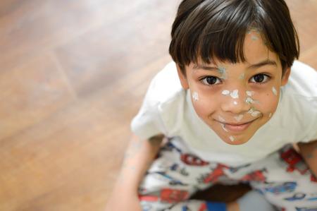 varicela: chico joven en su casa enfermo de varicela, blanco y crema antiséptica verde aplicada a la erupción Foto de archivo