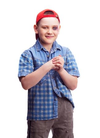 naughty boy with a bruise under his eye, isolated against white background Stock Photo - 9645770
