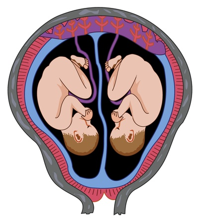 Twins in mother s womb Vector