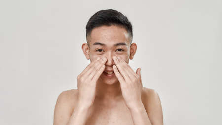 Portrait of young asian man with problematic skin and hyperpigmentation looking at camera, applying cream on his face isolated over white background