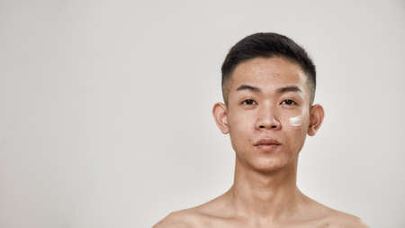 Close up portrait of young asian man with problematic skin applied cream on his face, looking at camera isolated over white background. Beauty, skincare, treatment concept