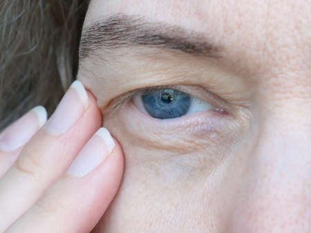 middle aged female's eye with drooping eyelid. Ptosis is a drooping of the upper eyelid, lazy eye. Cosmetology and facial concept, first wrinkles, closeup Imagens