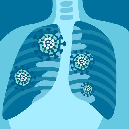 X-ray of respiratory system with symptoms Vecteurs