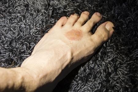 sarpullido: erupciones en la piel en el pie.