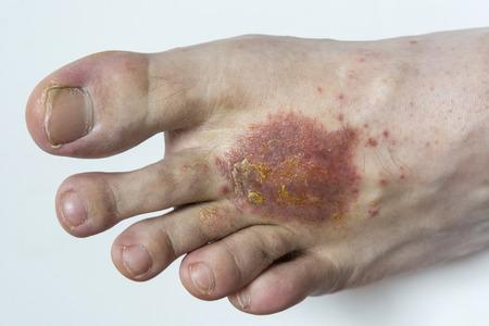eczema: Foot with eczema.