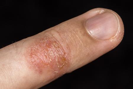 disharmony: Eczema occurring on fingers.