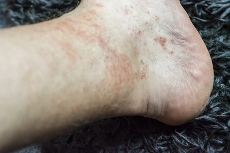 Eczema - Foot disease on the foot of the foot.