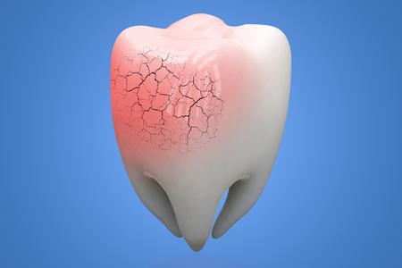 Broken human Tooth on blue background. 3d illustration.