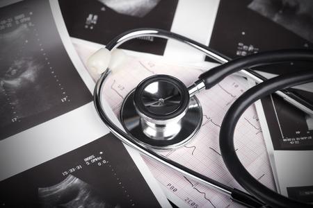 Medical Test - Stethoscope, ultrasound shot and cardiogram