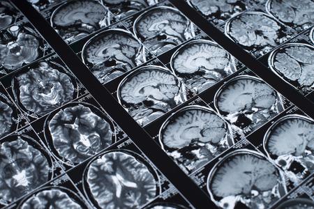 MRI Brain Scan of head and skull Stok Fotoğraf