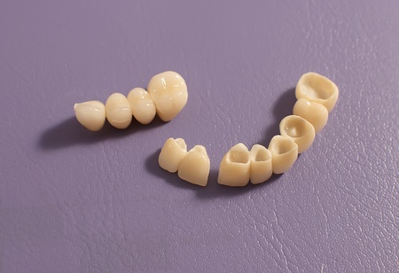 Dental prosthesis on violet background .