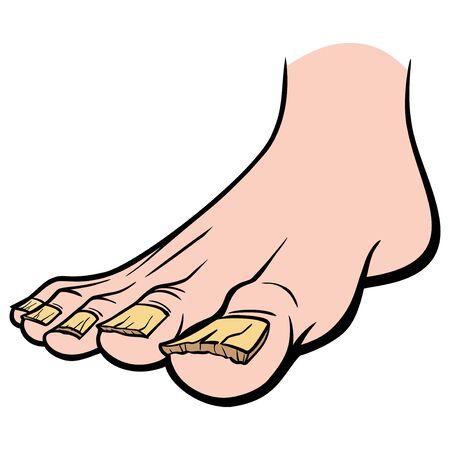 Nail Fungus - A cartoon illustration of a foot with Nail Fungus.