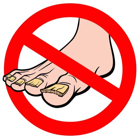 No Nail Fungus - A cartoon illustration of a No Nail Fungus Sign.