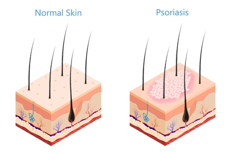 Cut human skin in isometric style on a white background isolated  Medicine problem skin psoriasis Vector illustration of psoriasis disease and healthy skin poster for the study of medical subjects Ilustracja