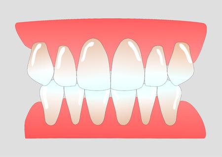 vital front teeth