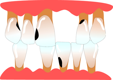 front teeth with tooth gaps, caries and periodontitis 스톡 콘텐츠