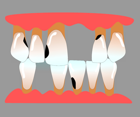 front teeth with tooth gaps, caries and periodontitis Stock Photo