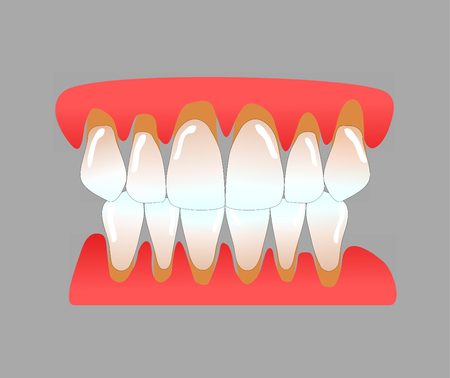 front teeth with periodontitis Stock Photo