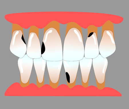 front teeth with caries and periodontitis