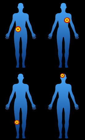 zones: Body silhouette with localized pain zones with black in background Stock Photo