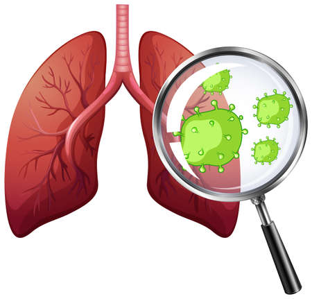 Diagram showing virus cells in human lungs illustration