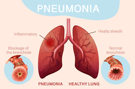 Poster design for pneumonia with human lungs illustration
