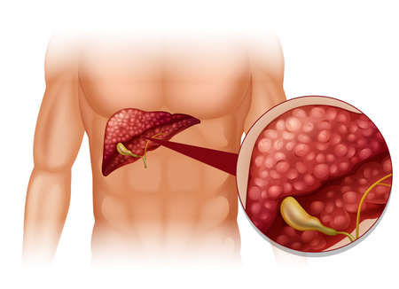Diagram of sclerosis in human illustration