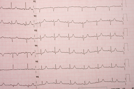 electrocardiograms, Heartbeat represented on graph paper. Stock Photo