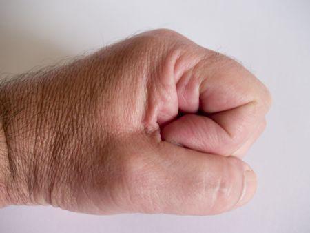 closed fist: Closed Fist