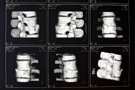 Diagnosis to fracture of a vertebral